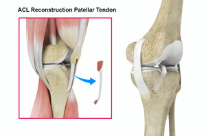 Acl Reconstruction Patellar Tendon